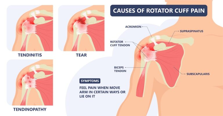 Causes of rotor cuff pain.