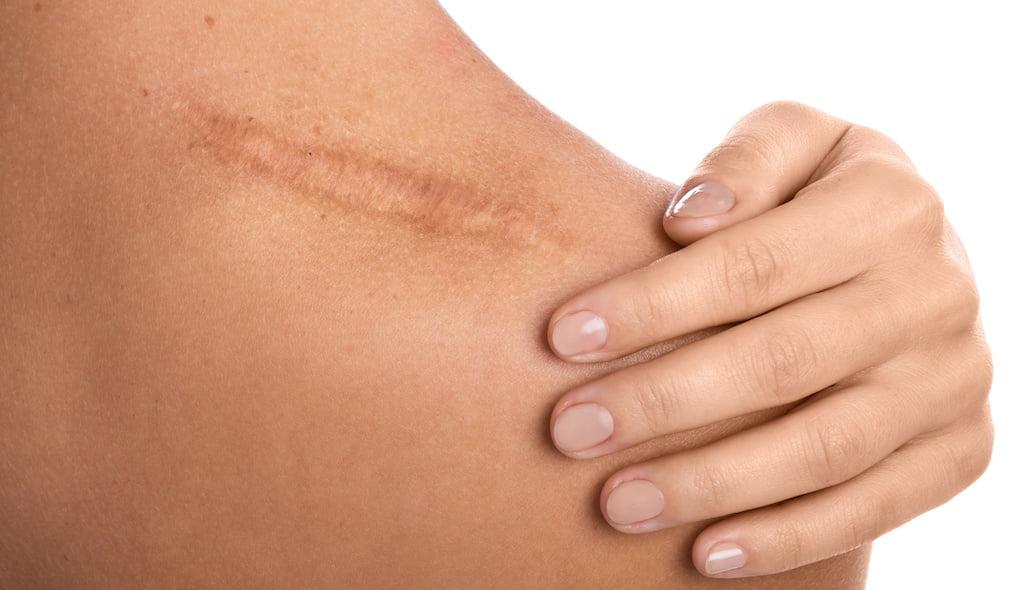 Scar tissue shockwave treatment.