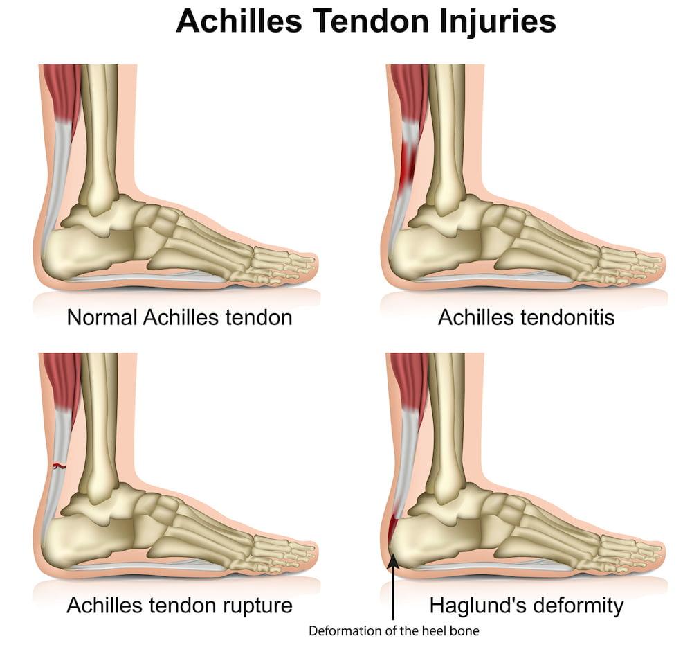 achilles tendon injuries shockwave