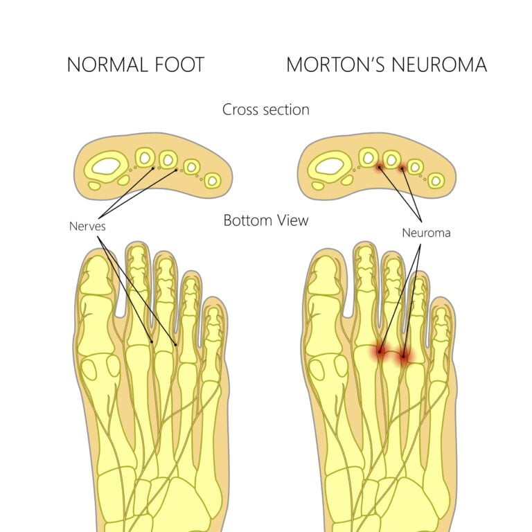 Morton's neuroma shockwave therapy.